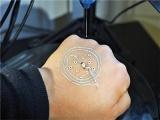 美研发出新技术 可在皮肤3D打印